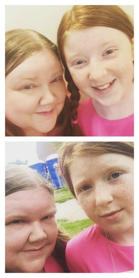 Race for Life - Before and After