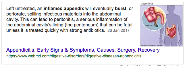 What is a burst appendix